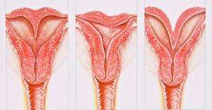 deformitet-materice